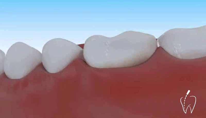 Tu dentista y la endodoncia