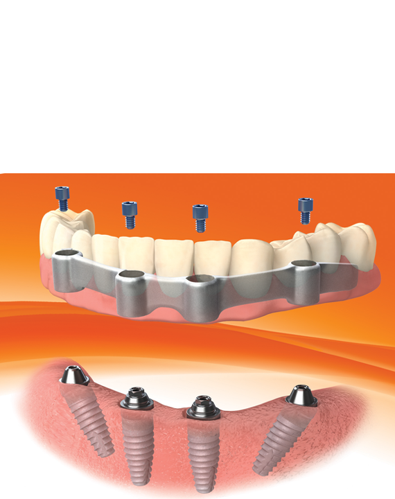 Implantes Dentales Córdoba